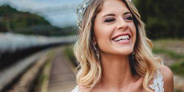 Get perfect white teeth for your wedding